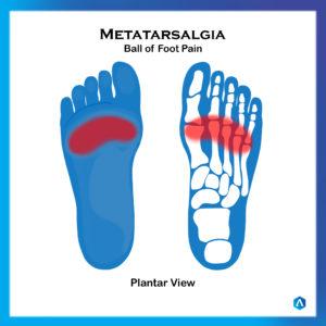 Metatarsagalia