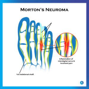 Mortons Neuroma (1)