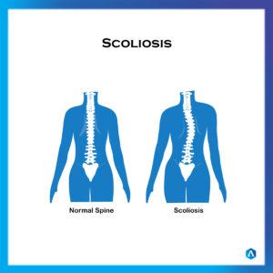 Scoliosis Amend