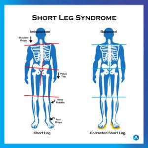 Short Leg